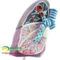LUNG04(12501) стороны анатомическую модель больных легких, 2/3 натуральную величину патологическая модель легкого