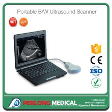 Ultrasonido veterinario Digital portátil PT3000e1