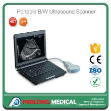 PT3000e1 l'échographie vétérinaire numérique Portable