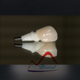Dental zirconia implant crown