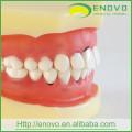 Modèle de dents péridontal dentaire molle démontable EN-L3 pour la formation