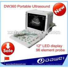 Volle digitale LED-Ultraschallscanmaschine für tragbare Ultraschallmaschine des Ultraschalls DW360