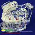 DENTAL08 (12567) Restauración de modelos de dientes de enfermedad de implantes dentales transparentes