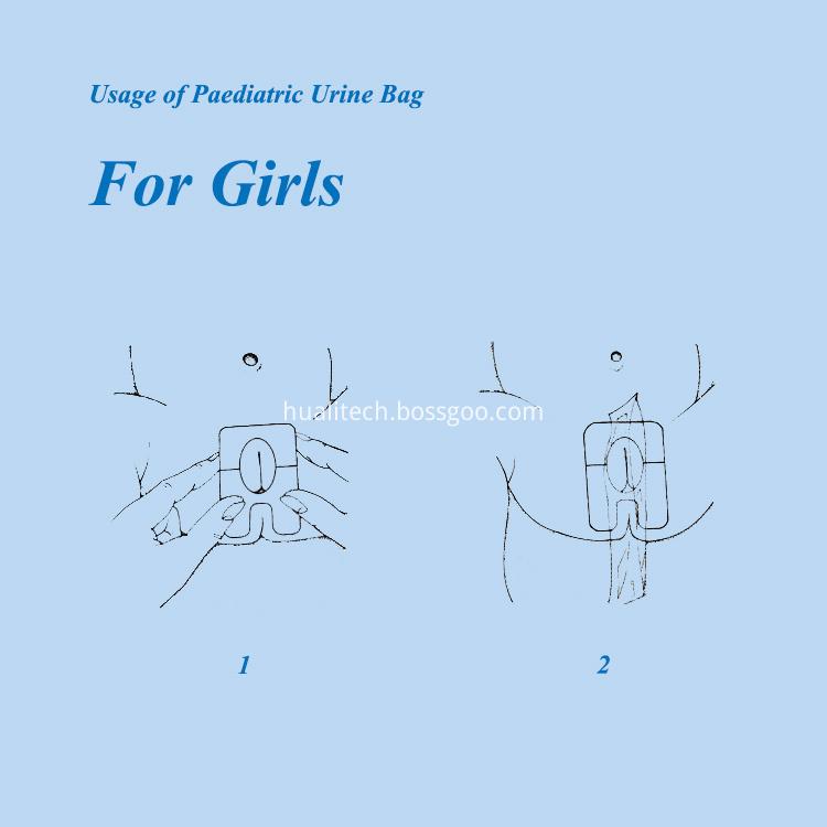 Usage of Paediatric Urine Bag for Girls