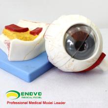 EYE05 (12529) Modèle de globe oculaire à anatomie médicale, 5 fois en taille réelle, 7 pièces, Modèles Oeil-Oto-Rhino-Laryngologie> Oculaires