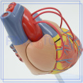 PNT-0400a Hot Sell Atherosclerosis Plastic Human Heart Model