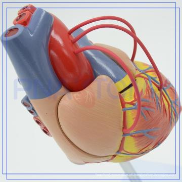 PNT-0400a Venda quente Atherosclerosis Plástico Coração Humano Modelo