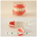 Modelo dental 13017 de la mandíbula dental de Gingiva suave desprendible modelo anatómico médico de China