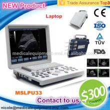 La máquina de ultrasonido B / W más barata portátil más popular para el embarazo MSLPU33-I
