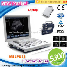 The most popular portable cheapest B/W ultrasound machine for pregnancy MSLPU33-I
