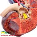 VERKAUFEN 12430 Vergrößern Medizinisches Modell Menschlicher Körper Organische Nebenniere und Niere