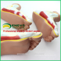MUSCLE10(12034) Medical Anatomy Human Foot Normal, Flat, Arched Foot Model 12034