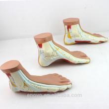 MUSCLE10 (12034) Medizinische Anatomie Menschlicher Fuß Normaler, flacher, gewölbter Fuß Modell 12034