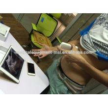 2016 la plus fréquemment utilisée à l'hôpital sans fil ultrason / machine à ultrasons sans fil MSLPU31i pour OB, GYN examen