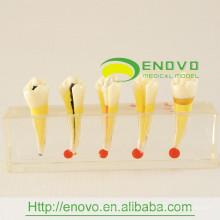 Modèle clinique de la maladie de pulpe dentaire de haute qualité EN-M5 pour l'usage de communication de docteur-patient
