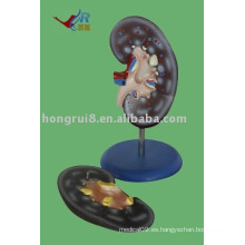 Modelo de la anatomía del riñón, un modelo del riñón (2 pedazos)