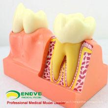 TOOTH21 (12599) 4 Four Time Agrandir Dentaire Dentaire Structure Anatomique Modèle de démonstration