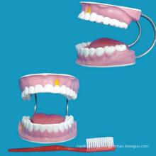 Modelo de dentes dentários de 28 dentes para modelo de ensino médico de cuidados dentários