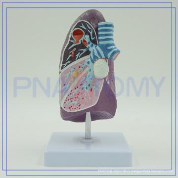 PNT-0732 Pathological model of bronchi pulmonary ,biological model