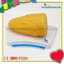 Modelo de gordura TPR anatômica de 5 libras para educação