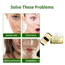 Hot Selling Products Herbal Cream Tea Tree Oil Acne Moist Cream for Women Skin Face Cream Collagen Antiaging