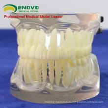 VENDER 12572 dientes dentales humanos articulares FE para el estudio de los dientes