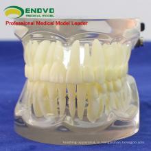 Продать 12572 суставной человеческих зубов ФЕ для исследования зуба