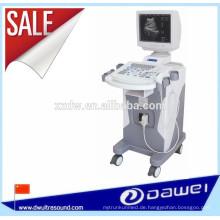 Medizinische sonoscape Ultraschalldiagnostikgeräte