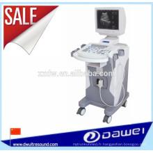 équipement diagnostique d'ultrason de sonoscape médical