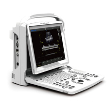 Ultraschall, Ultraschall-Scanner schwarz weiß Doppler Laptop Portable (SC-ECO3-Experte)