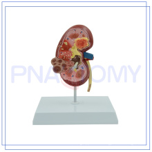 PNT-0739 hot sale & high quality Plastic Human male transparent Kidney modelUrinary Bladder with Prostate Model of Higih Quality