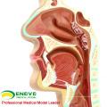 THROAT04(12508) Pathology Nasal Cavity Section Model, Full Size, Ear-Eye-Nose-Throat Models > Nasal Cavity Models