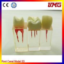 Modelo de canal de raiz dental para treinamento