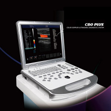 4d color doppler ultrasound scanner machine