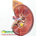 KIDNEY01(12430) Enlarge Medical Science Human Organs Anatomy Adrenal Gland Model