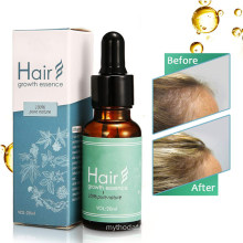 OEM Professional Custom Herbal Hair Loss Prevention Treatment Growth Serum