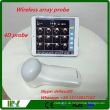 2016 Neue Marke 4D drahtloser Blasenscanner Protable Blasenscanner Ultraschallarbeit mit iphone / ipad / andriod MSLPU37A