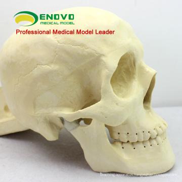 TF09 (12320) Skull Repair Surgery Practice Model for Medical Education