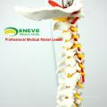 SPINE10 (12382) Modelo Anatômico de Ciências Médicas de Qualidade, Coluna Vertebral em Tamanho Real com Pelve