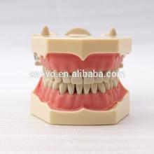 32 stücke Abnehmbare Zähne SF Typ Dental Studie Modell für Schule Bildung 13009