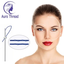 Minimally Invasive Face Lifting Mono Screw Thread Pdo