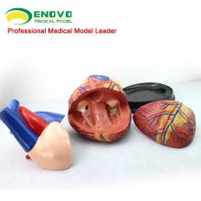 HEART10 (12486) Oversize Modelo de Anatomia do Coração Humano, 4 vezes Vida em Tamanho Real Ampliar, 3 Partes, Modelos de Anatomia> Modelos de Coração