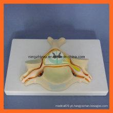 Quinta vértebra cervical com medula espinal e nervo espinhal Ampliar modelo