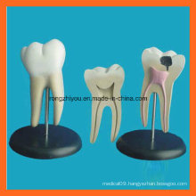 Giant Molar Anatomical Tooth Dentistry Model