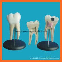 Modelo gigante de dentes odontológicos anatômicos molares