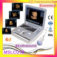 Ultrasonido más barato! MSLCU18i El último escáner portable barato del ultrasonido 4D / explorador portable del ultrasonido del ordenador portátil
