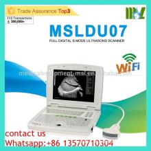 MSLDU07 Günstige und hohe kostengünstige Latop Ultraschall Maschine Doppler Ultraschall Maschine Preis