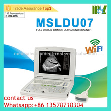 MSLDU07 Cheap & High cost effective Latop Ultrasound Machine Doppler Ultrasound machine price