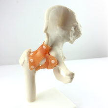 JOINT06 (12353) Medizinische Anatomie natürliche Größe Hip Joint Modelle