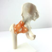 JOINT06 (12353) Anatomie médicale Taille normale des articulations de la hanche
